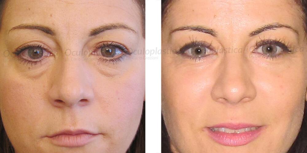 Operazione laser di un prezzo di occhio
