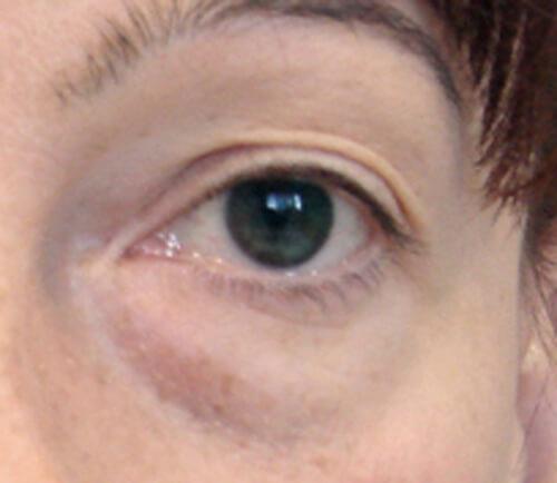 Cerchi azzurri sotto occhi a bimbi