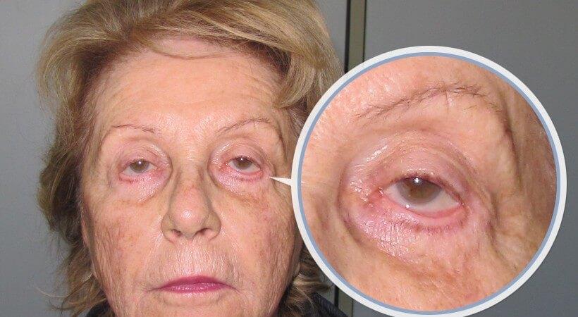 Botox la palpebra superiore è caduto