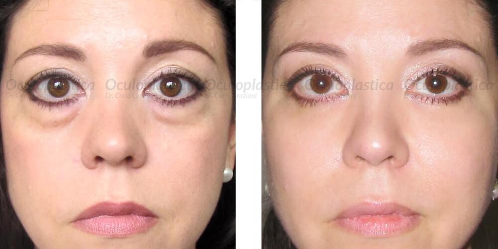 immagine prima e dopo borse palpebrali