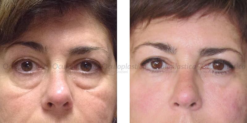 Dose di Botox su una faccia