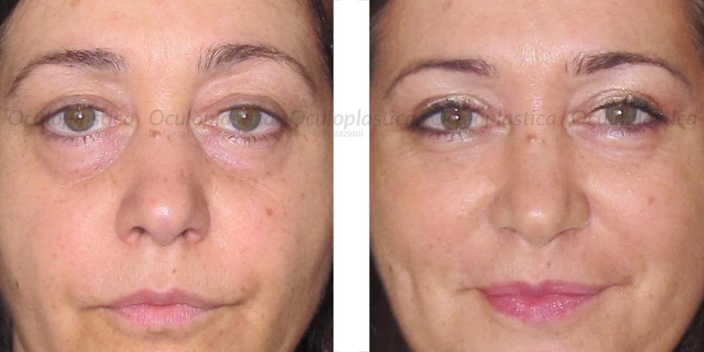 immagine prima e dopo blefaroplastica