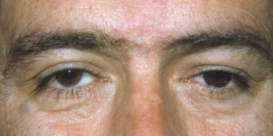 immagine post intervento cavità anoftalmica
