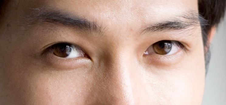 blepharoplasty-cosmetic-eyelid-surgery-2