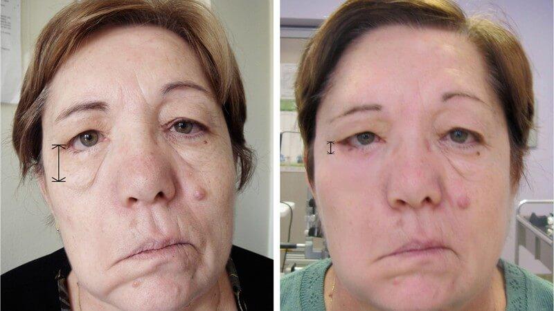 prima e dopo intervento paralisi al volto
