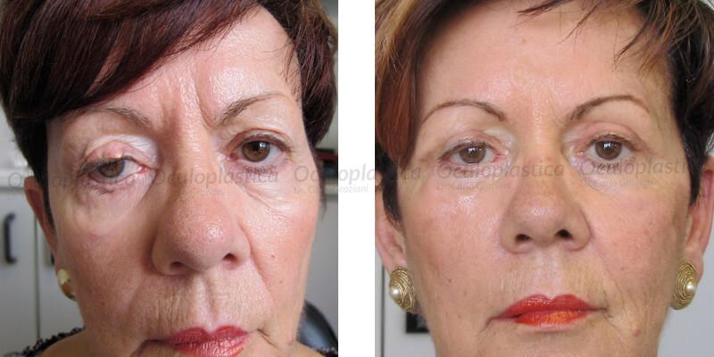 immagine pre e post paresi facciale