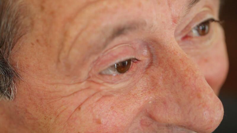 immagine post intervento protesi oculare