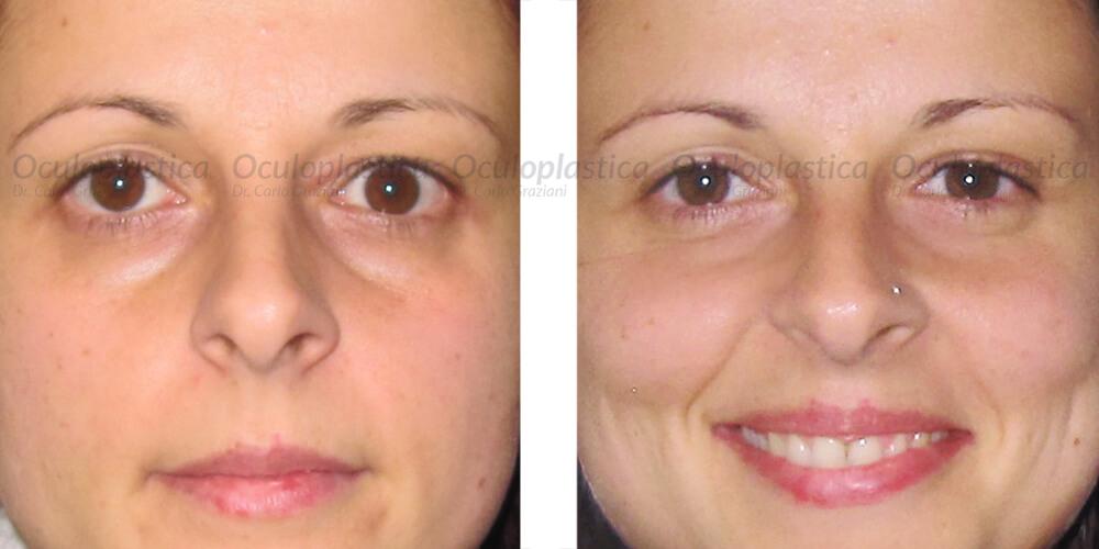 immagine prima e dopo retrazione palpebrale